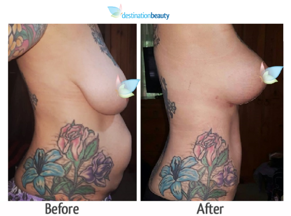 breast augmentation with lift and tummy tuck thailand