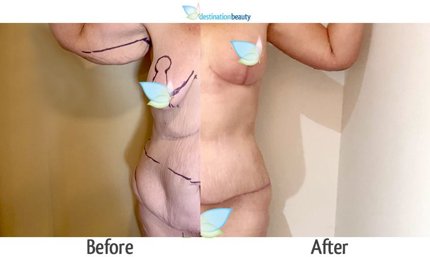 breast augmentation with lift, extended tummy tuck, arm lift, mons lift