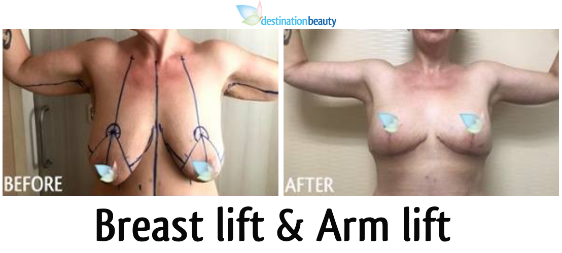breast lift and arm lift thailand