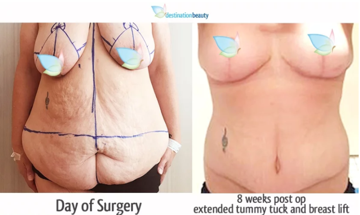 breast lift and extended tummy tuck
