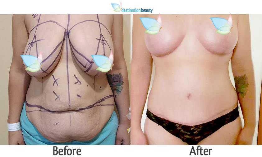 breast reduction and extended tummy tuck 1