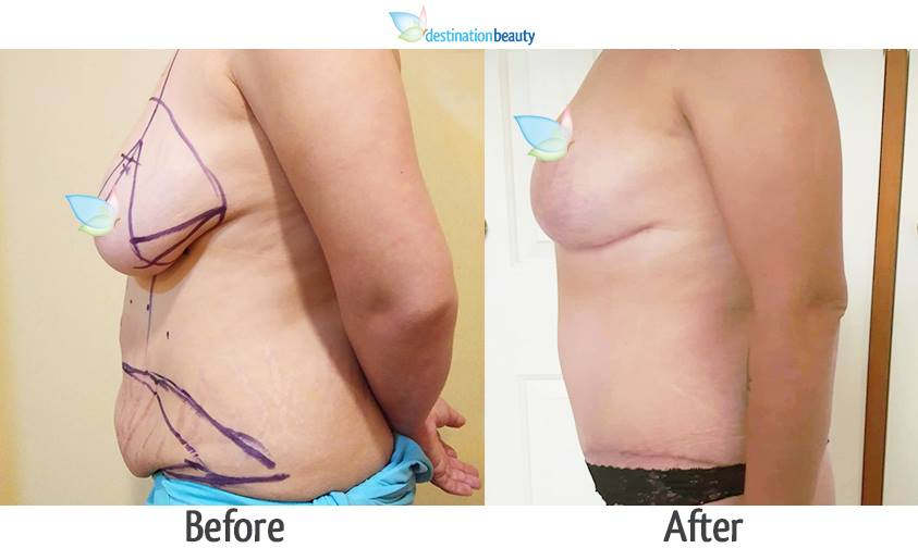 breast reduction and extended tummy tuck 3