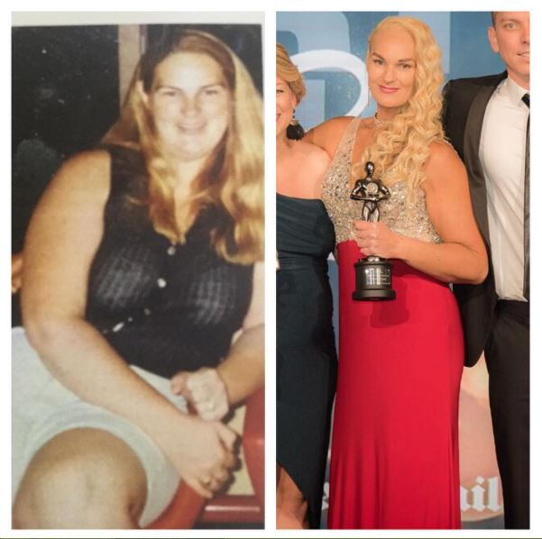 before abd after massive weight loss