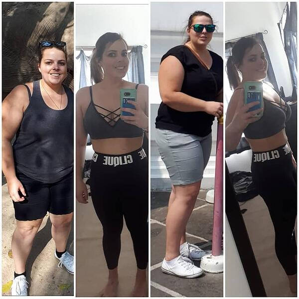 chanelle-weight loss surgery