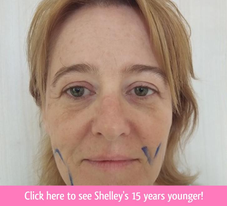 shelley face lift