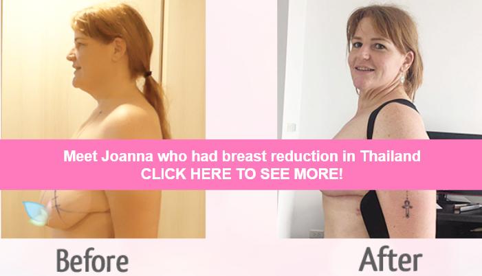 joanna breast reduction thailand