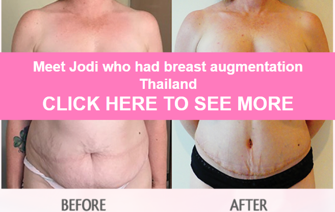 jodi breast augmentation and tummy tuck