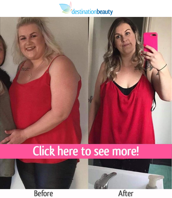 katie weight loss surgery