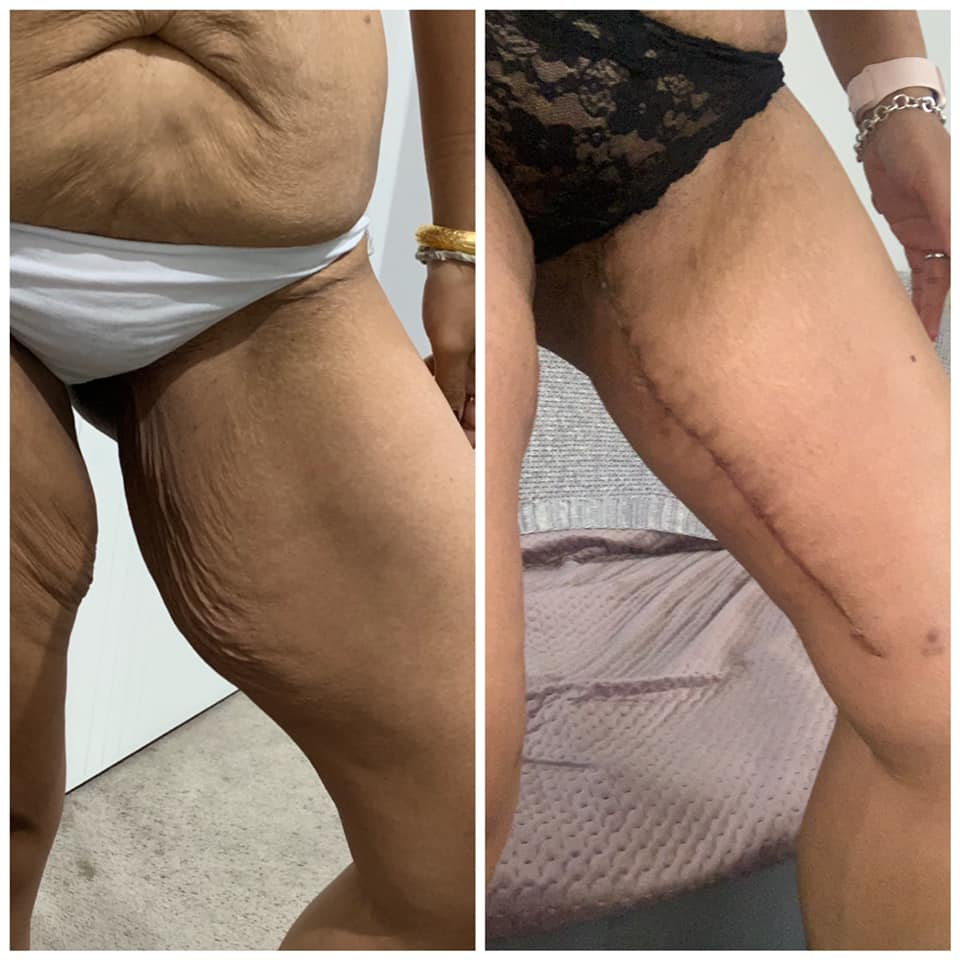 mia's extreme makeover - thigh lift