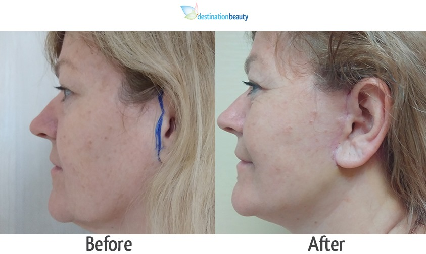 mid face and neck lift 3