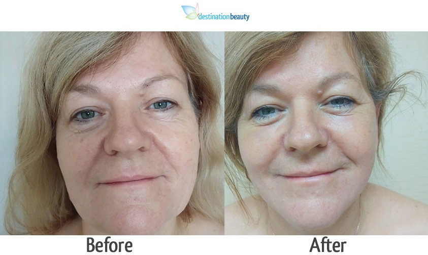 mid face and neck lift