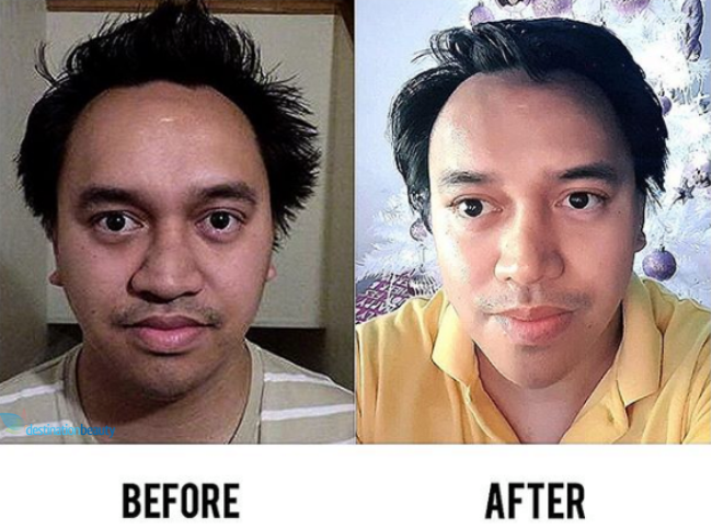 nose reshaping thailand
