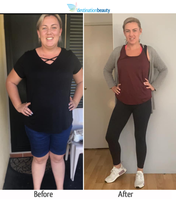 paula lost 47 kgs 8 months after gastric sleeve update
