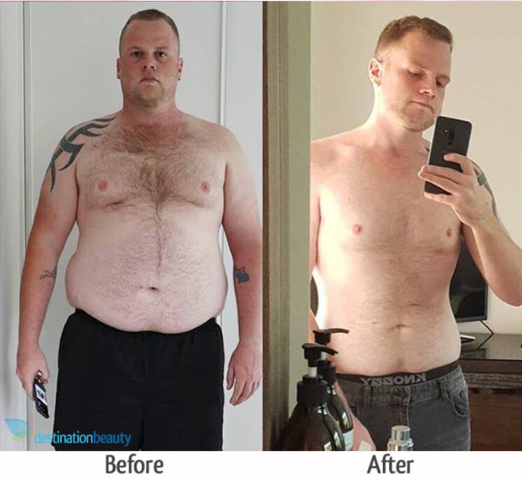 reece before and after gastric sleeve thailand