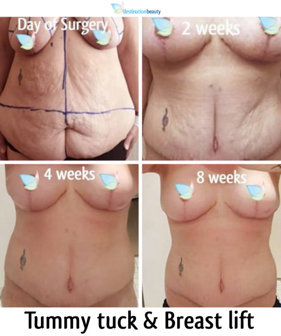 tummy tuck and breast lift